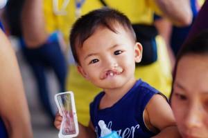 Clo dư gây bệnh hở hàm ếch ở trẻ em
