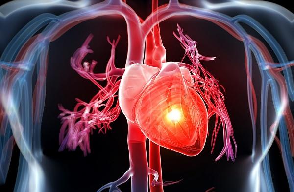 Sodium không tốt cho người mắc bệnh tim mạch